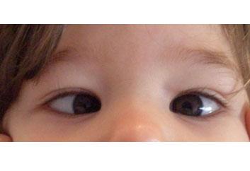 adresati o intrebare unui oftalmolog pediatru)